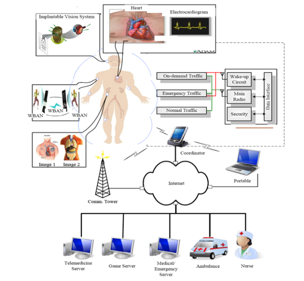 WBAN architecture for ubiquitous health monitoring
